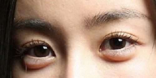 眼袋怎么形成的,当你有这些坏习惯时要注意了